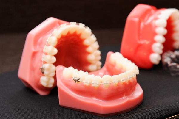 美しい歯並びで健康維持も矯正歯科治療