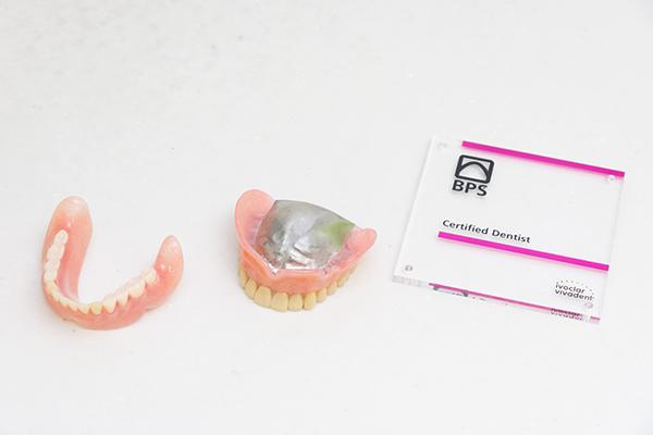 型取りを工夫して口にフィット口の動きまでを考慮した入れ歯