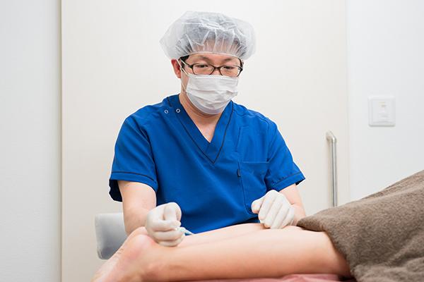 高周波治療による下肢静脈瘤の日帰り手術