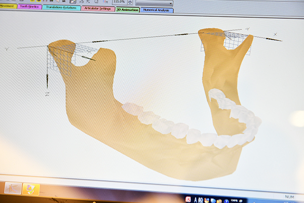 顎の位置を数値で可視化できるコンピューターによる顎関節の検査
