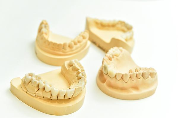 患者の希望を大切にする審美歯科歯科技工士との連携で精度向上を