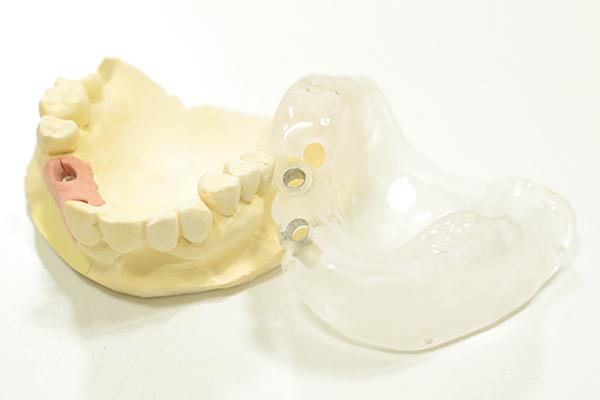 安全面に考慮したインプラント歯医者のインプラント治療について