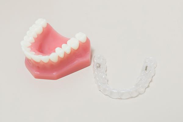 矯正 マウス ピース 歯 列