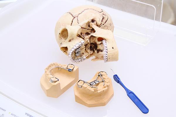 子どもの顎顔面矯正に注力顎の骨を整え、健康な体と歯並びを