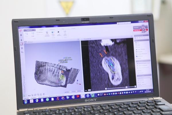 緻密な分析とプランニングでズレを極小化CT画像を駆使したインプラント
