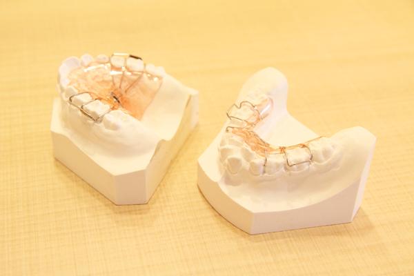 開始時期が重要! ニーズの高まる小児矯正歯科について