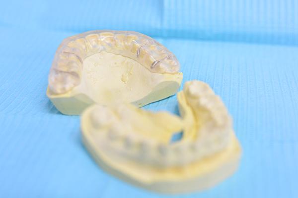 肩こりや耳鳴りは歯科に相談ナイトガードで噛み合わせ治療