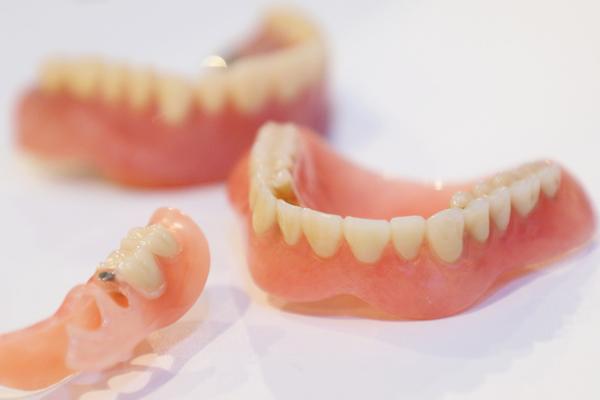 失った歯をふたたび手に入れる入れ歯治療のポイントを徹底解説