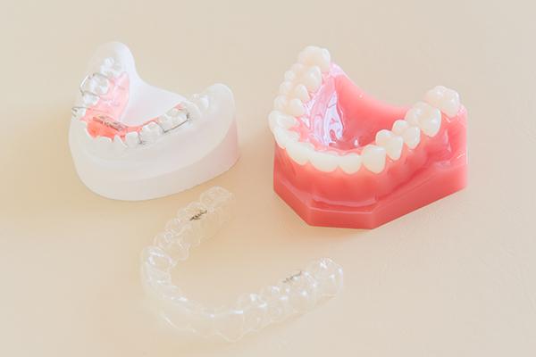 幼少期における予防歯科の重要性と予防視点でも勧めたい矯正治療