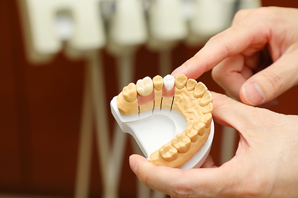 口腔内全体の状態を見渡すことで美しさと機能面の両立が可能