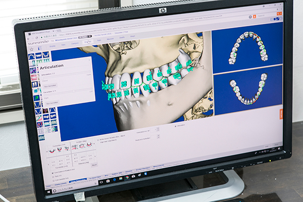 正確、安全をめざす矯正治療デジタル化により適切な方法を提案