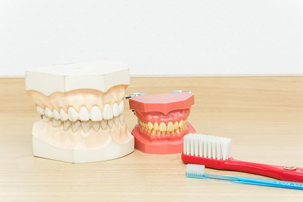 歯周病予防やケアの重要性と歯が欠損した場合の処置について