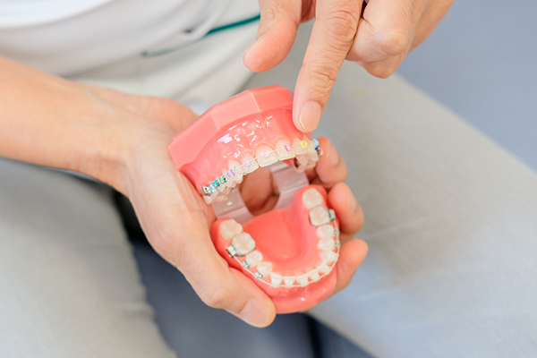 一般治療と並行できるメリットも身近な歯科医院で行う歯列矯正