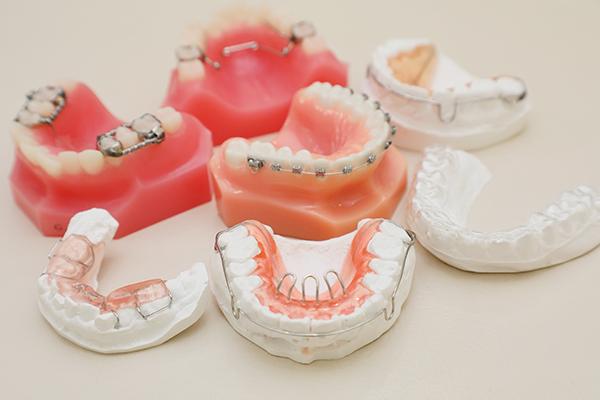 成長期を利用した小児の矯正抜歯をせず永久歯のスペースを確保