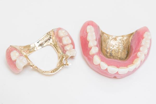 適合性と噛み合わせを重視材質にもこだわる入れ歯治療