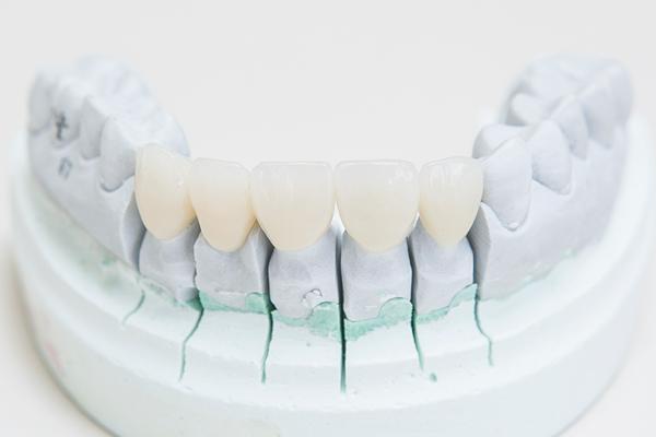 顔や肌の色に合った最適な審美歯科治療とは