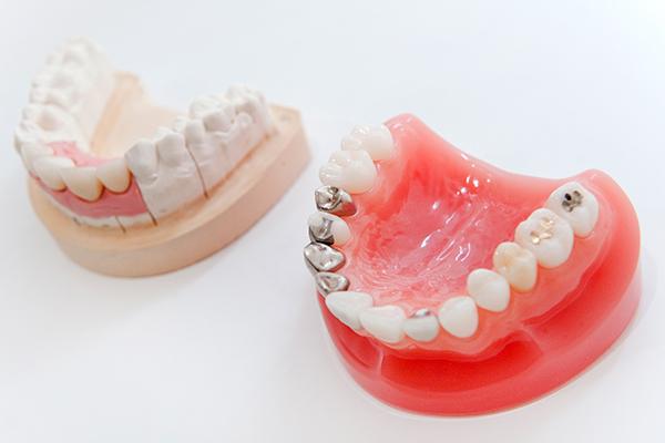機能性や安全性などセラミックの特性を存分に生かす歯科治療