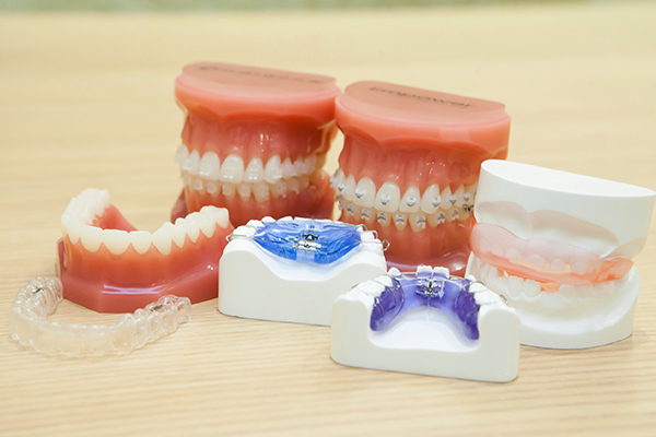 理想的な歯列を手に入れるため小児矯正で早期からアプローチを