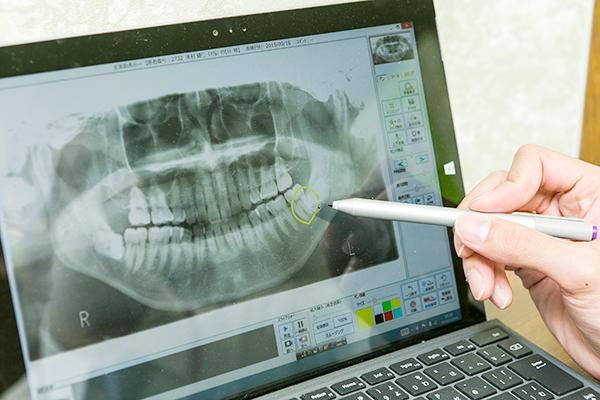 歯を失う原因となる歯周病きちんと定期検診に通うことが予防の要