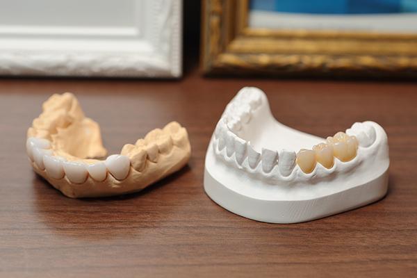 きれいな歯で笑顔に自信を機能面でも意義のある審美歯科