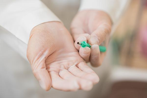 薬では治療できない「粉瘤」放置せず、小さいうちに外科的処置を