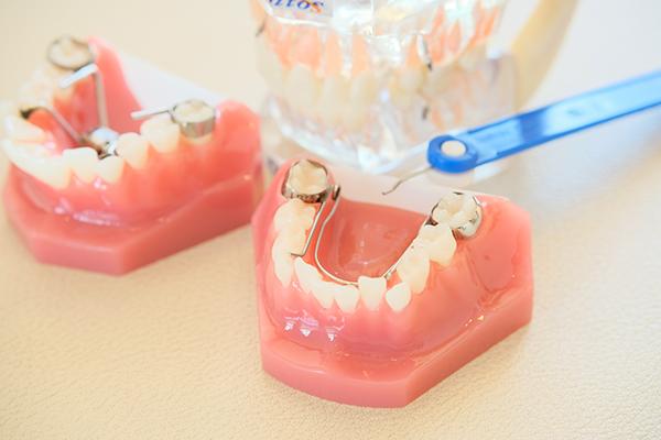 口呼吸の癖が歯並びに悪影響上顎の成長を利用した小児矯正