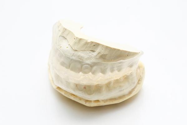 無呼吸やいびきを防ぐ歯科医院で作るマウスピース