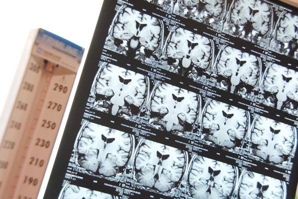 専門のノウハウであきらめない治療を「頭痛専門外来」