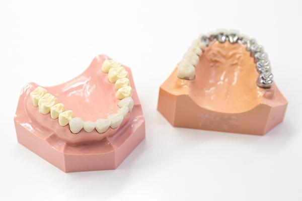 身近になった審美歯科気になる銀歯や、歯の色の悩みなどを解消へ