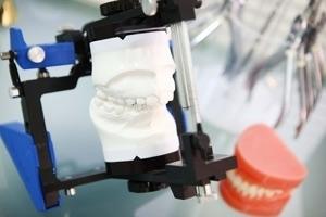若い頃のコンプレックスを改善に導くいきいきした50代を送る為の矯正歯科治療