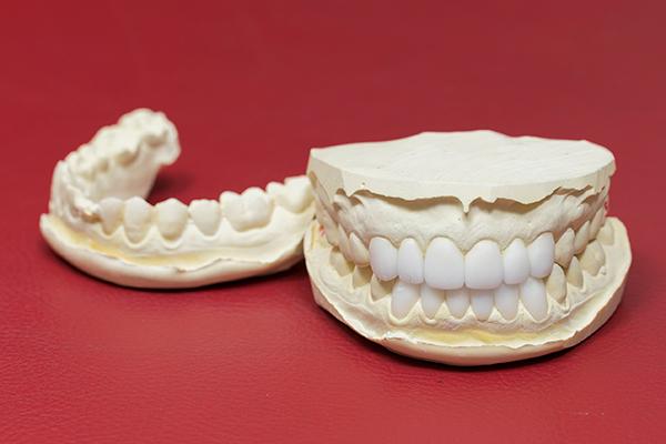自然な仕上がりをめざせるセラミック素材を用いた歯の治療