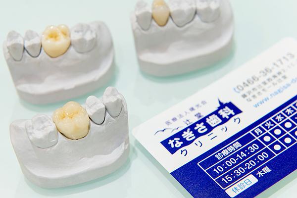 新素材の修復物でより良い治療をメタルフリー治療のメリット