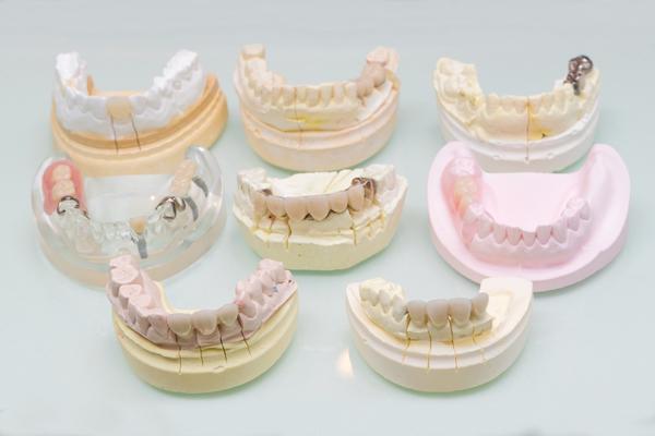 アマルガム使用の銀歯除去メタルフリーや金属アレルギーについて