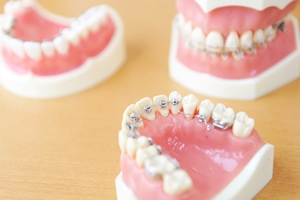 専門の技術と最新装置で気づかれない「舌側矯正」治療