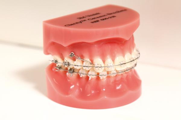 アンカースクリューを用いた矯正歯科治療