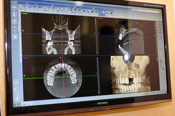 静脈鎮静とガイドシステムでより安全・確実なインプラント治療