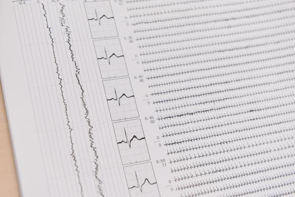 動悸、息切れやめまいの原因は?循環器疾患の症状と基礎知識